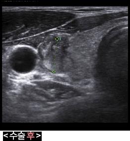 갑상선고주파 수술후 초음파 사진
