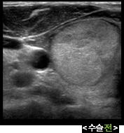 갑상선고주파 수술전 초음파 사진